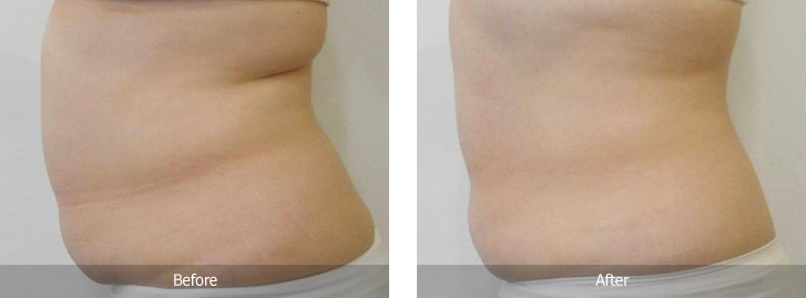 Fat freezing before after